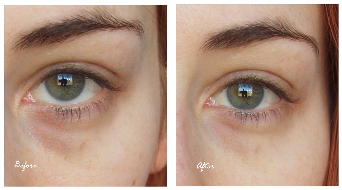 linjer under ögonen